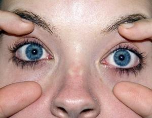 Eyes-Wide-Open-300x234