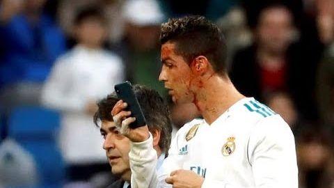 Cristiano Ronaldo Goal & Scary Injury | Real Madrid vs Deportivo 7:1 | 21.01.2018 HD