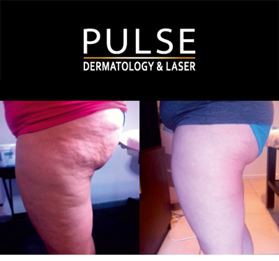Cellulite Reduction Cape Town