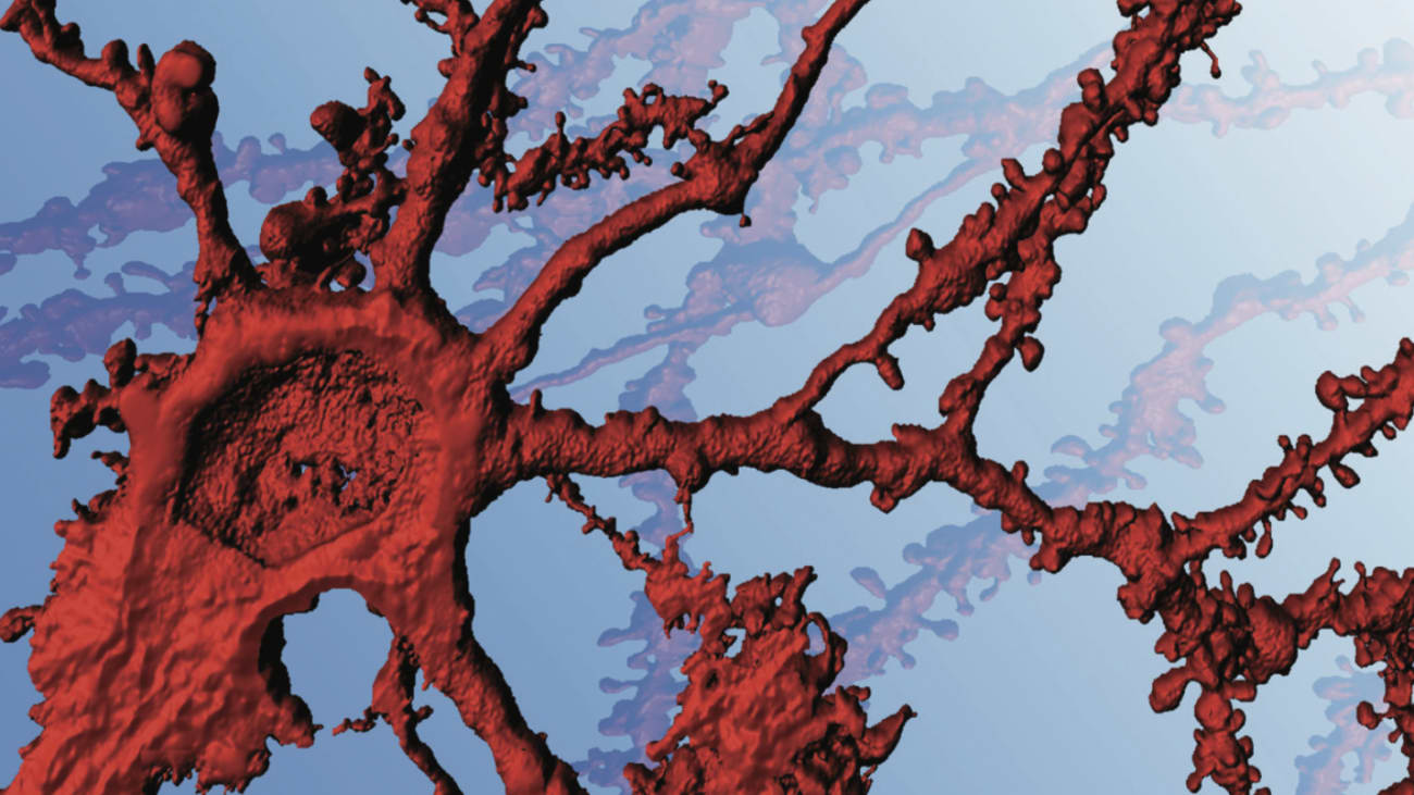 Image of neuron courtesy of Jennifer Cho, an M.D./Ph.D. student in Cowan's laboratory. Image acquired from a confocal microscope that was funded through an S10 Shared Instrumentation Grant Program (OD021532).