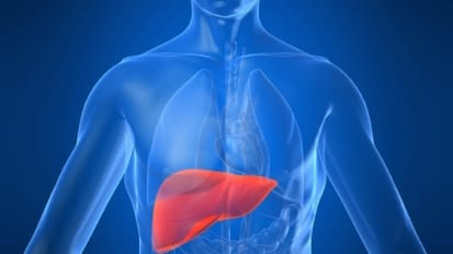 Liver Directed Arterial Therapy