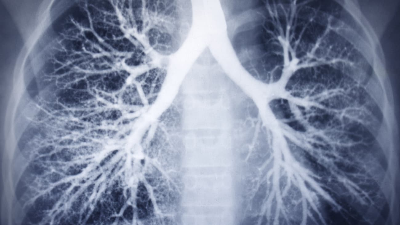 Clinical Minutes: Lung Cancer Screening