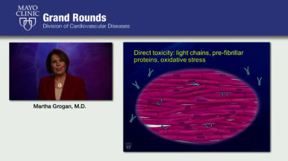 Grand Rounds: Cardiac Amyloidosis: What Every Cardiologist Needs to Know