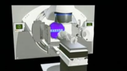 Cancer Treatment with Stereotactic Ablative Radiotherapy: Elekta Axesse™ SBRT Linear Accelerator