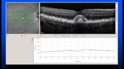 Mayo Clinic Ophthalmology Retina Update and Case Conference: Wet AMD or Not