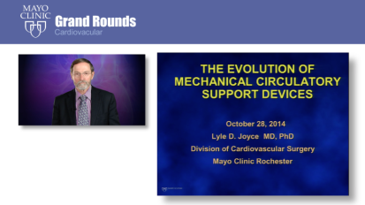 Grand Rounds: The Evolution of Mechanical Circulatory Support Devices