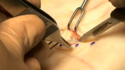 Hand Surgery Clip 1