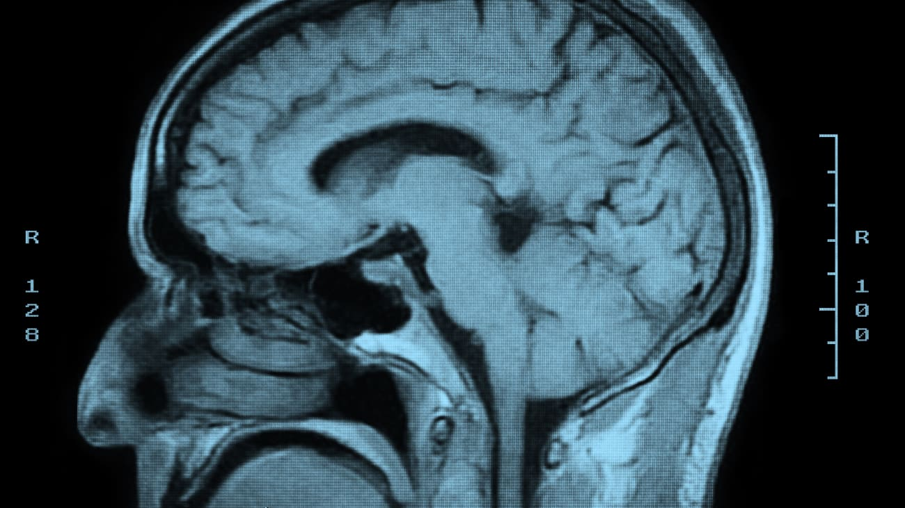 Podcast - Revealing the Secrets of the Brain: Stroke