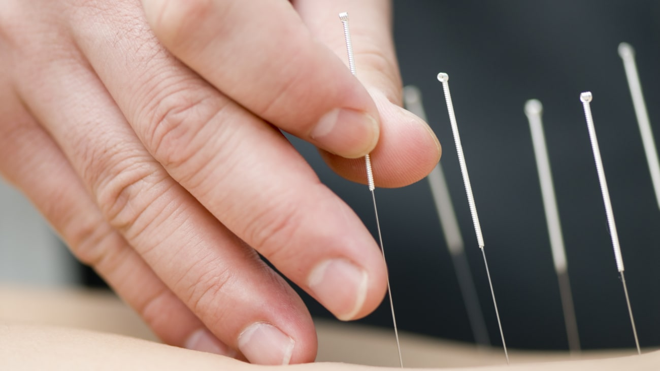 Grand Rounds: Evidence-Based Acupuncture For People With Cancer