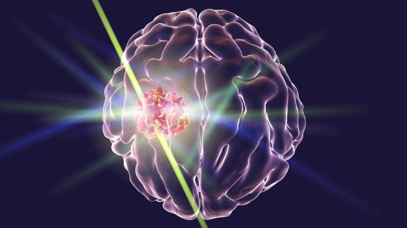 Laser Therapy for Brain Lesions