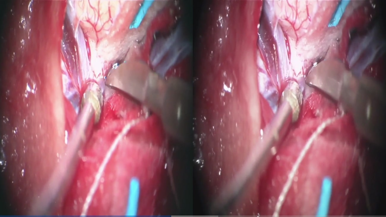 Focused Transsylvian Approach for a Left Posterior Insular Cavernous Malformation: 3D Operative Video