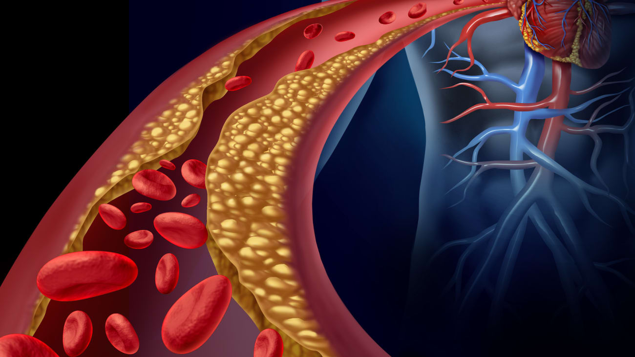 The Role Of Advanced Surgical Therapies For Massive Pulmonary Embolism