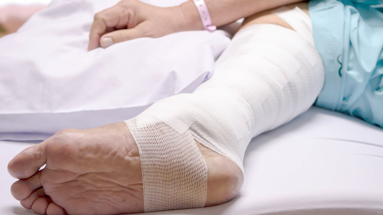 Venous Leg Ulceration: Approach to Management