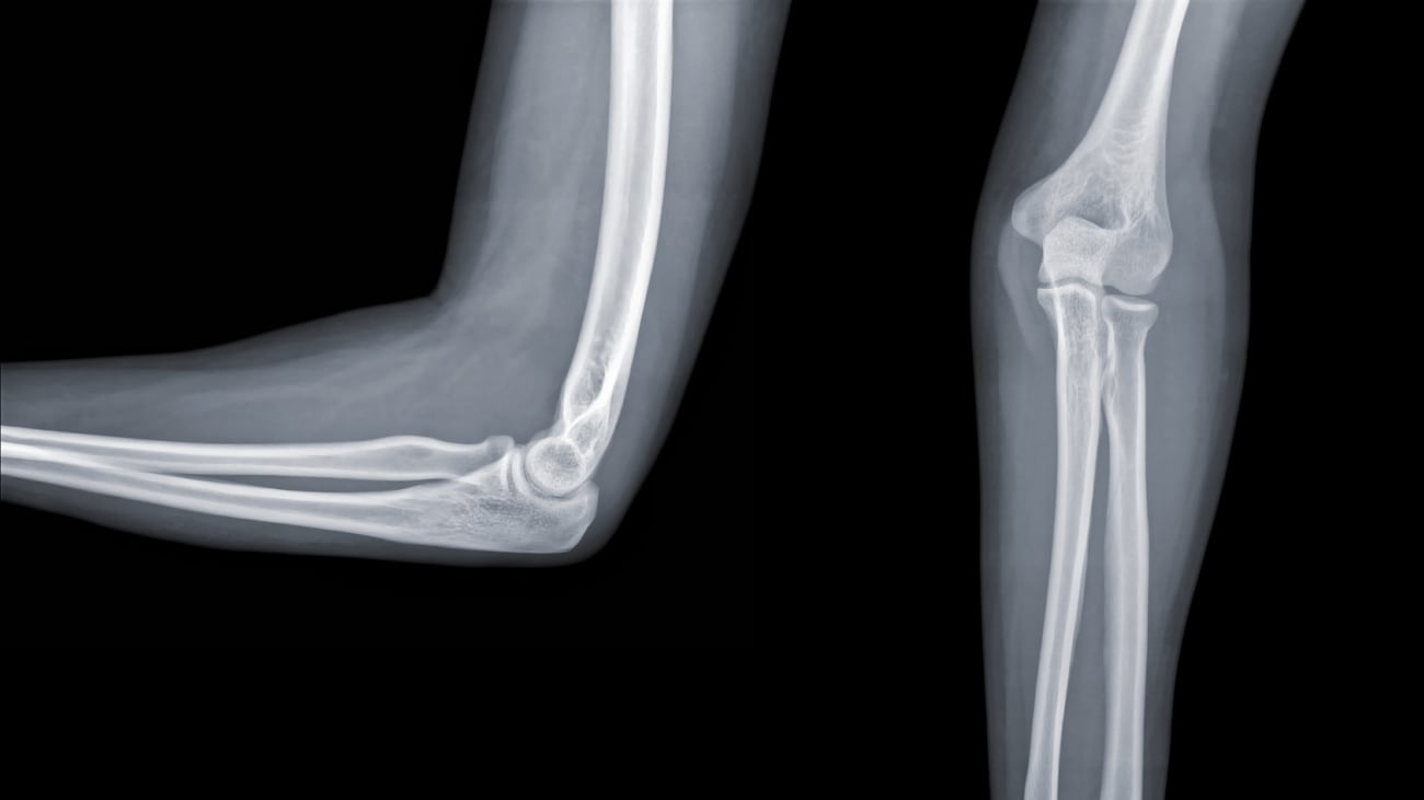 Chapter 1: Terrible Triad Injuries and the Complex Elbow: Anatomy and Biomechanics - Neil S. Tarabadkar, MD