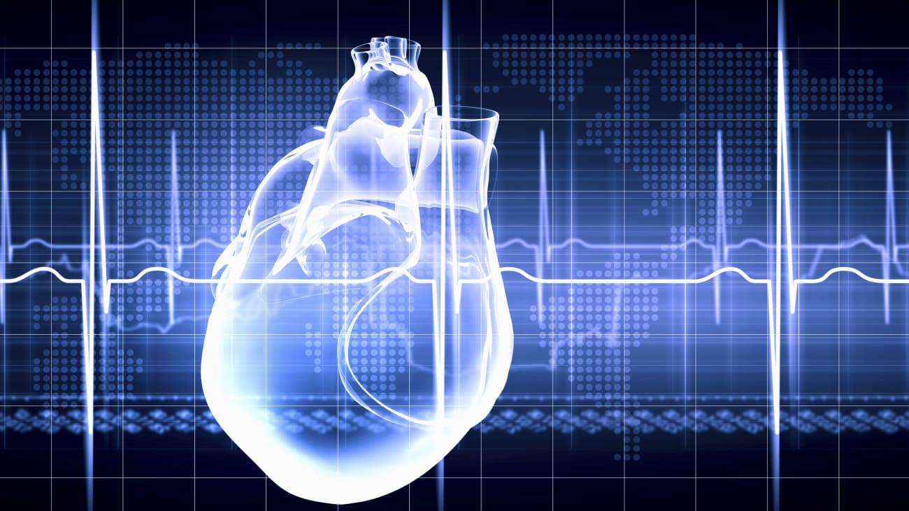 Atrial Fibrillation: State of the Art