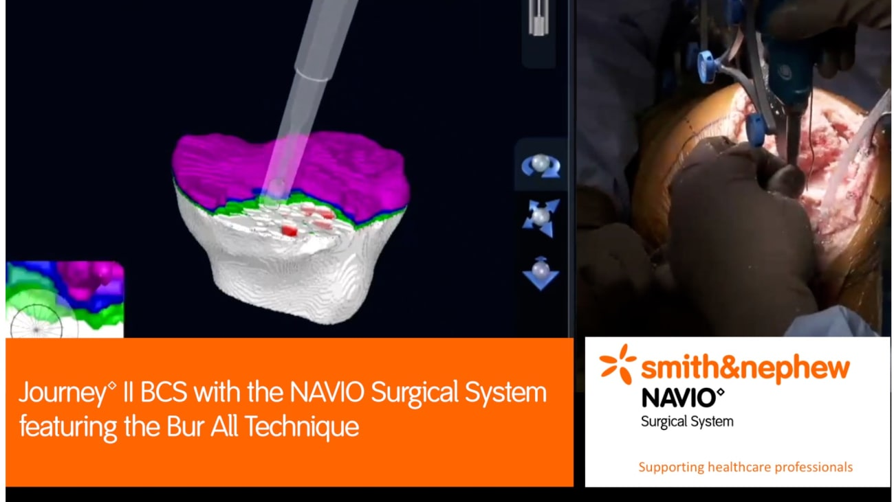 JOURNEY™ II BCS with the NAVIO Surgical System featuring the Bur All Technique