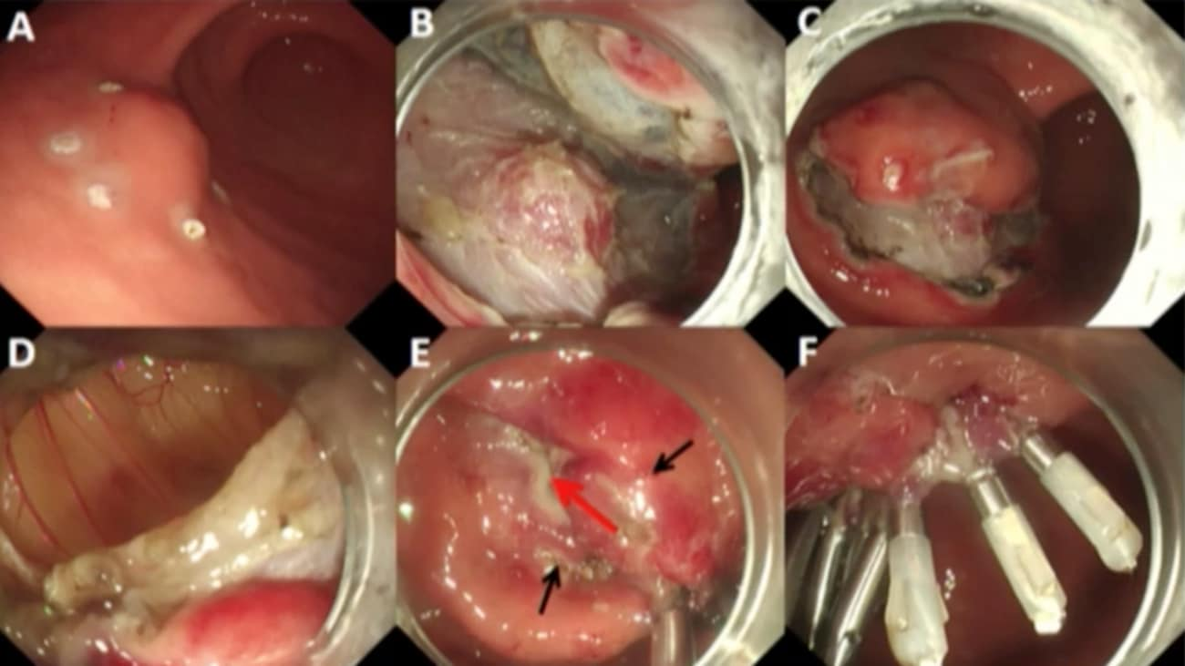 EFTR with Mucosal Preservation to Facilitate Closure