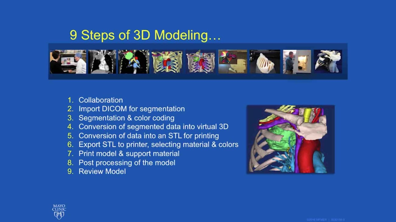 How to do 3D modeling for cardiothoracic surgery