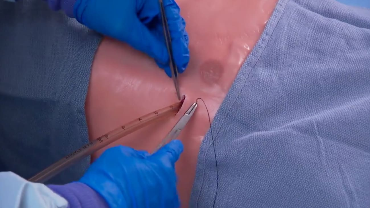 Securing a chest tube