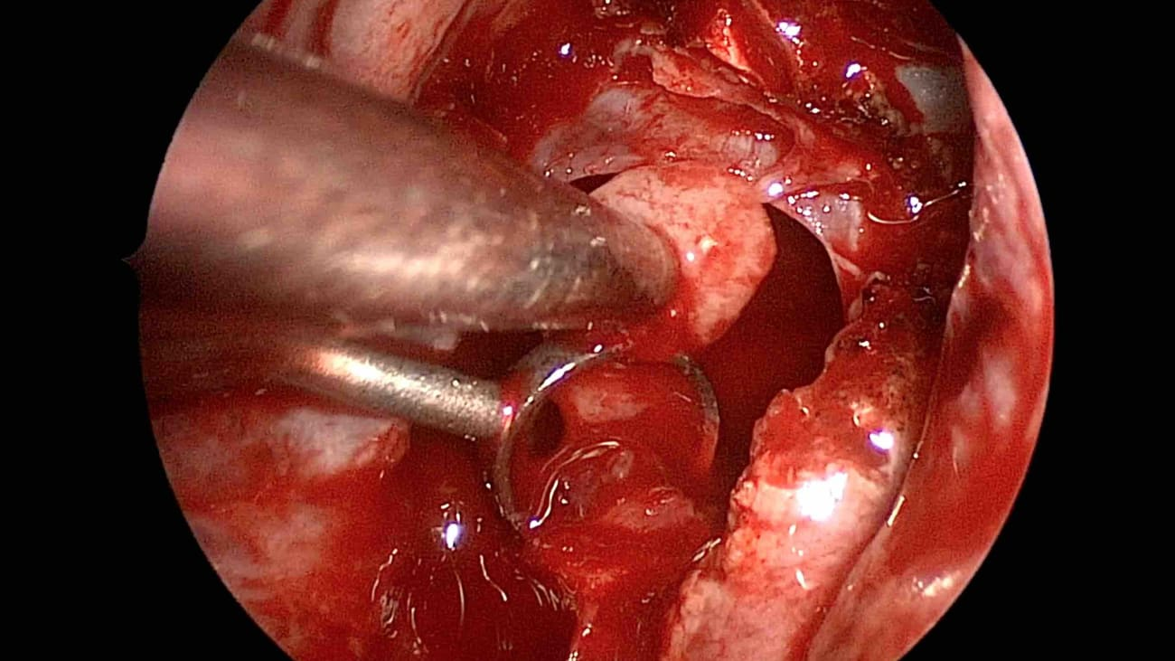 Endoscopic Endonasal Resection of Pituitary Tumors