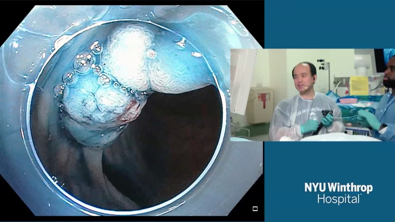 2018 LI Live: Live Endoscopic Procedures - Afternoon Part 2 of 2