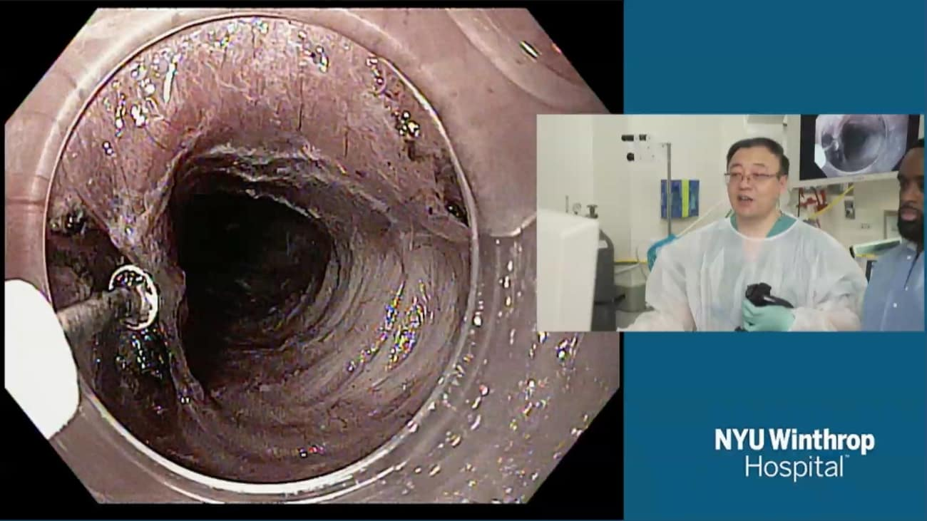 2018 LI Live: Live Endoscopic Procedures - Morning Part 1 of 2