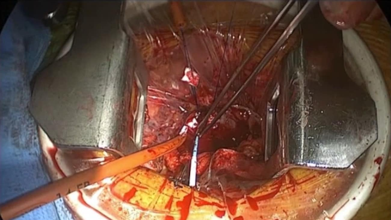 Right Anterior Minithoracotomy Direct Aortic Access