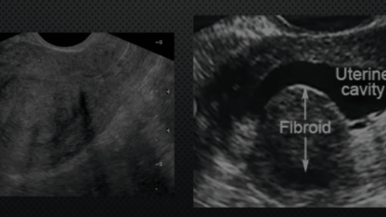 Case Studies: Fibroids