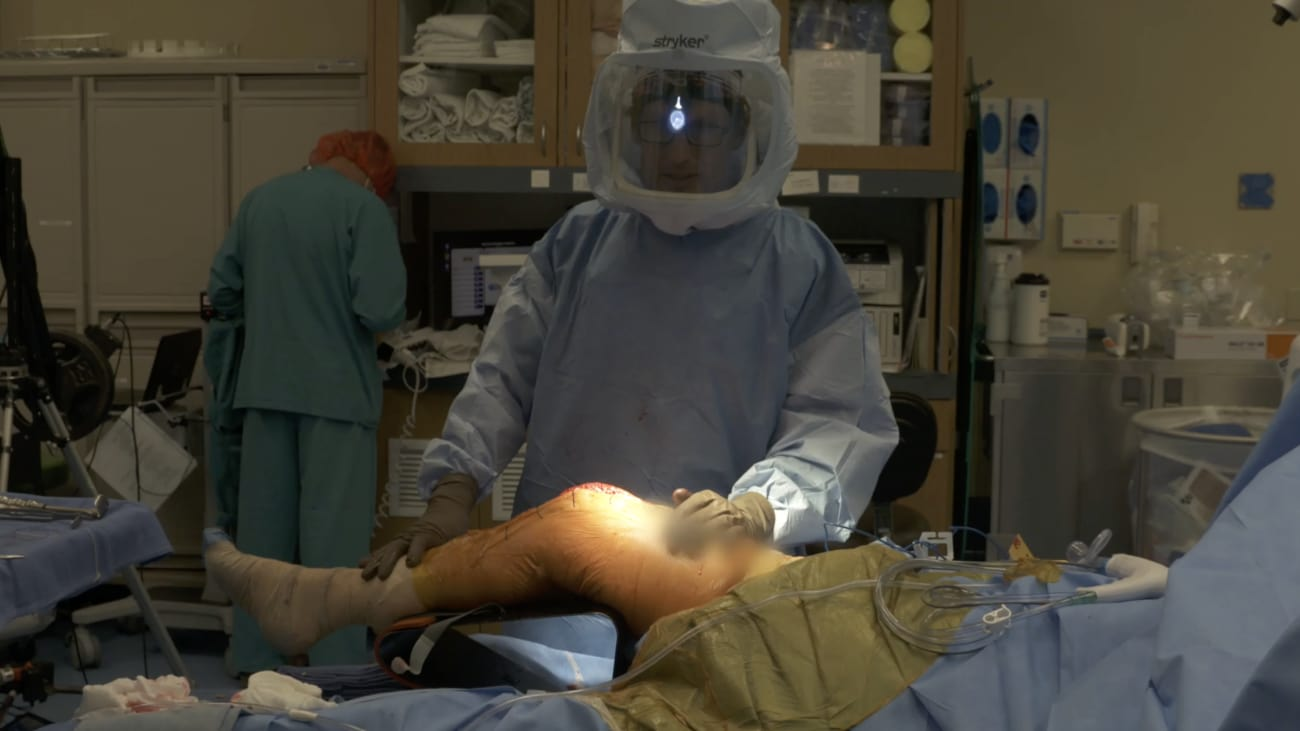 JOURNEY™ II Bi-Cruciate Stabilized (BCS) Knee featuring the Distal Bur Technique using the NAVIO Surgical System