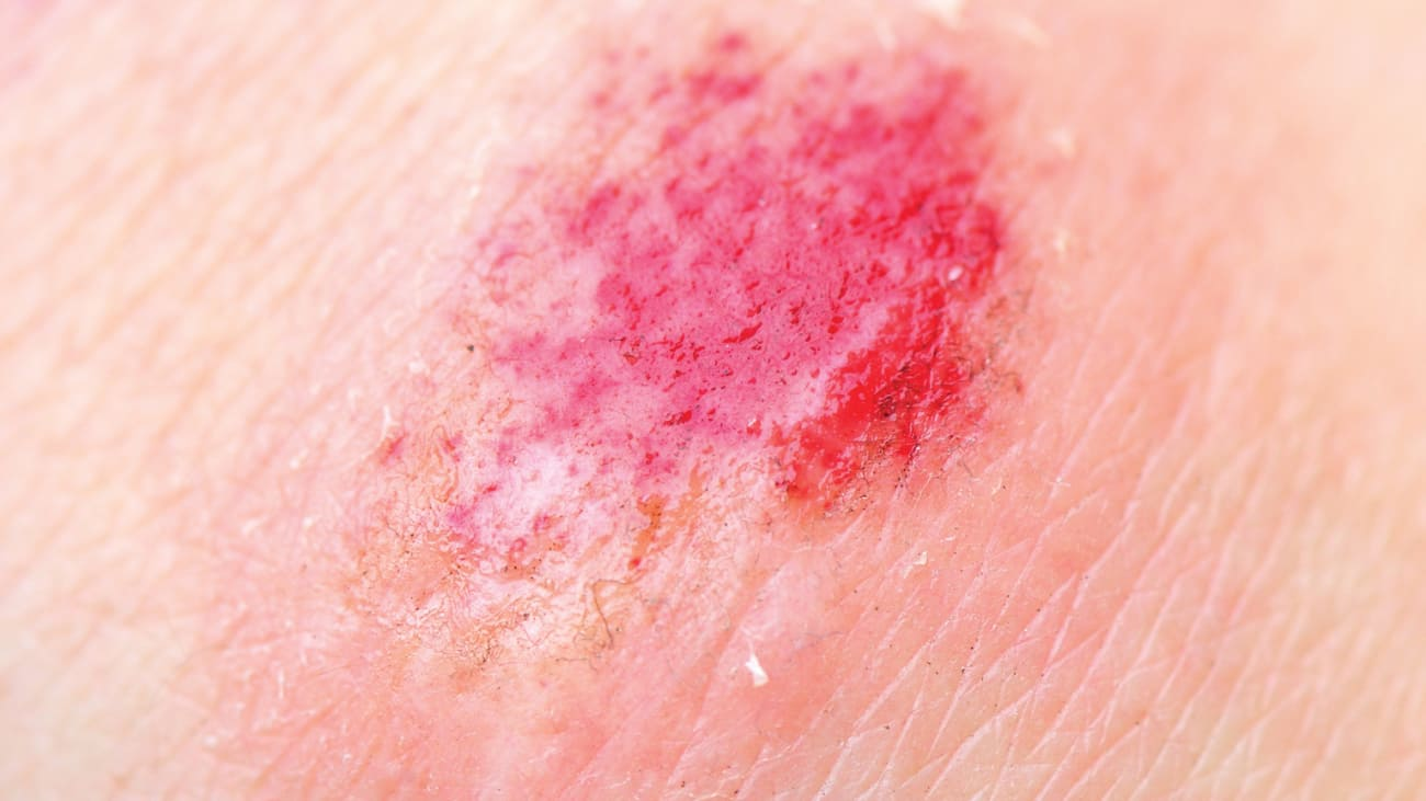 Chronic Wound Management: Pressure Injuries
