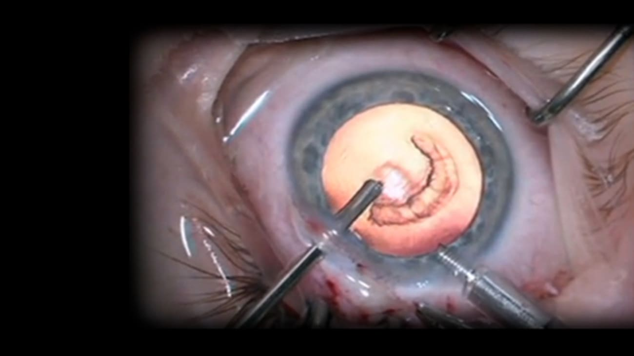How Cataracts Are Diagnosed