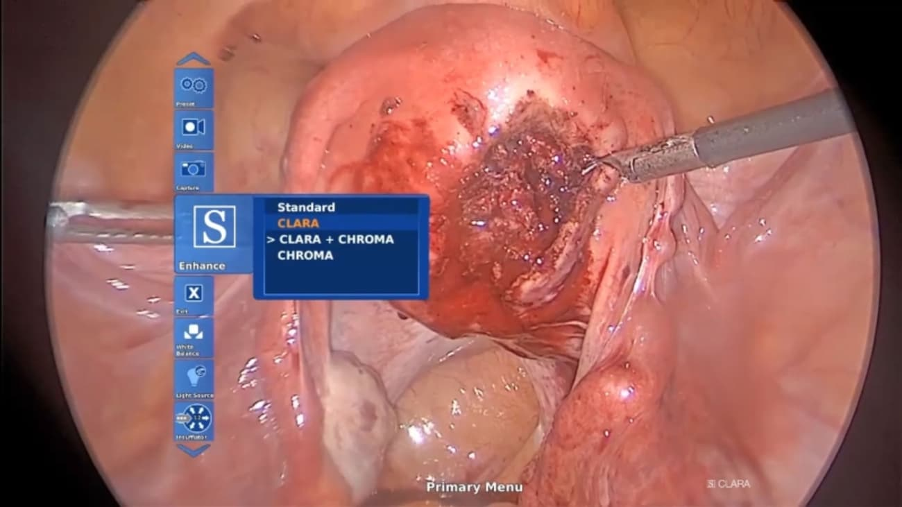 Use of IMAGE1 S for Endometriosis Procedure