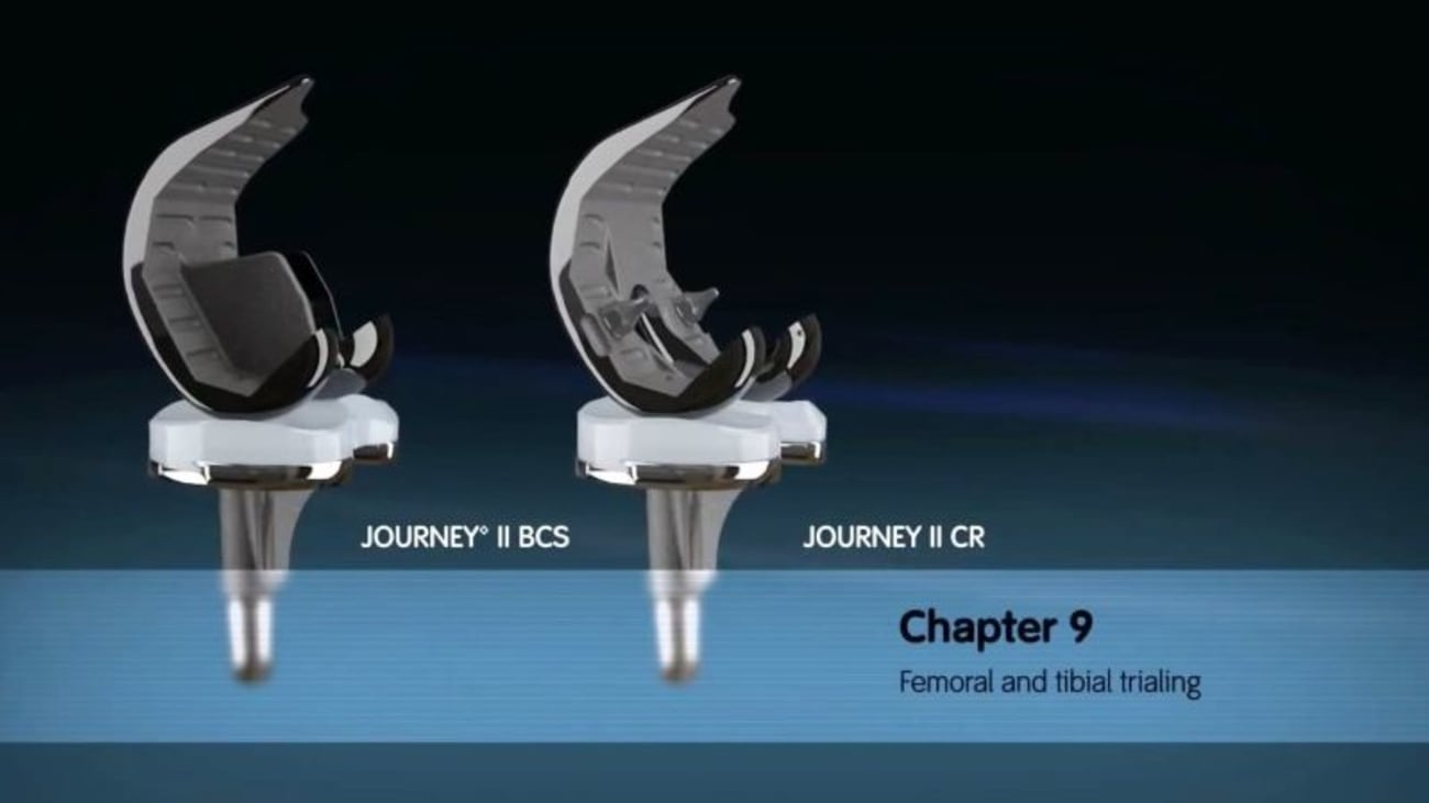 JOURNEY II Active Knee Solutions - Chapter 9