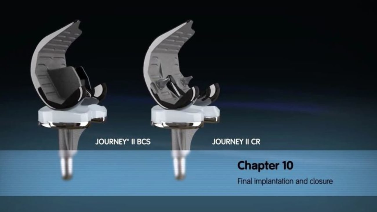 JOURNEY II Active Knee Solutions - Chapter 10