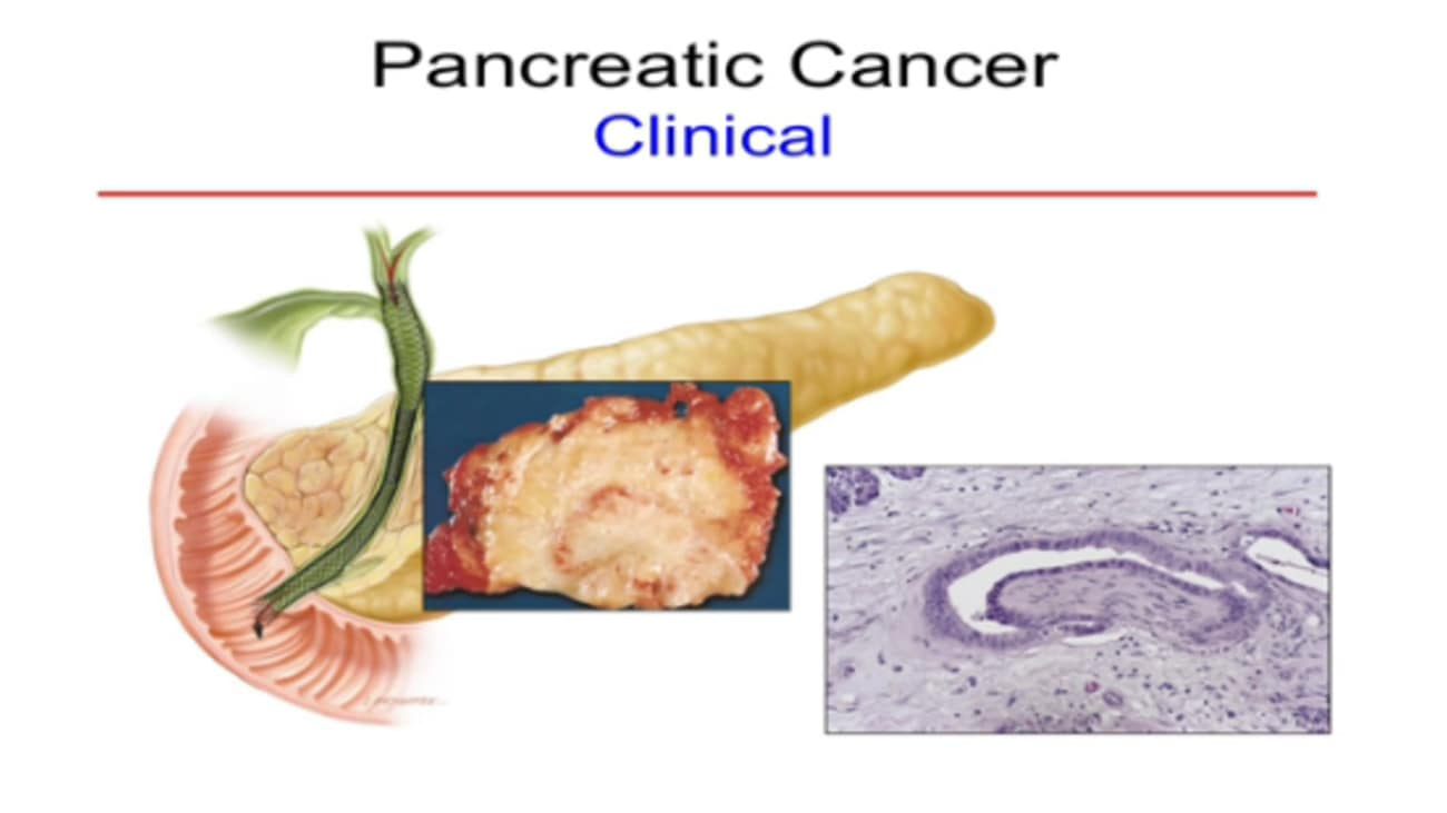 New Developments in Pancreatic Cancer Prevention and Detection Girish Mishra, MD