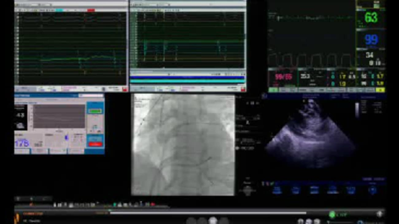 AF Ablation (Cryoballoon) Performed By Dr. Javier E. Sanchez