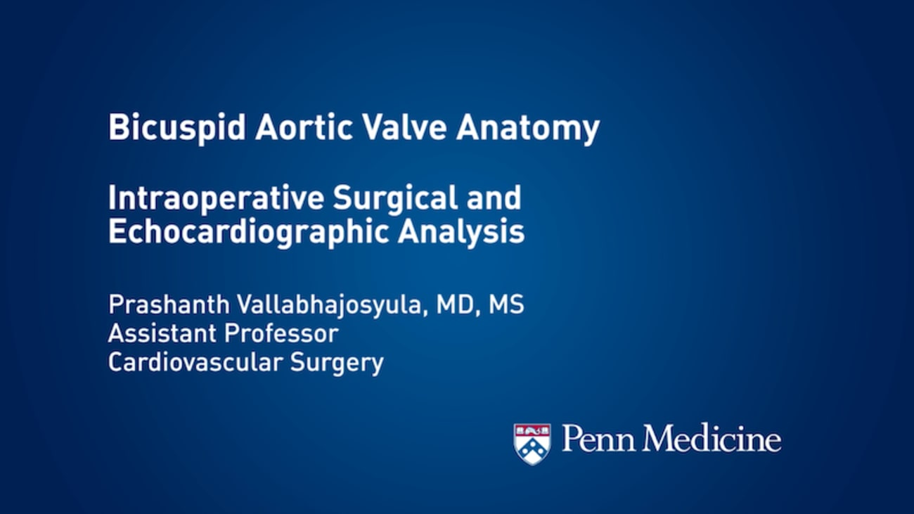 Bicuspid Aortic Valve Anatomy:</br> Intraoperative Surgical and ...