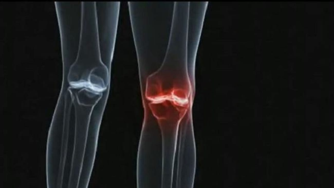 St. David's Round Rock Medical Center - Joint Replacement Overview