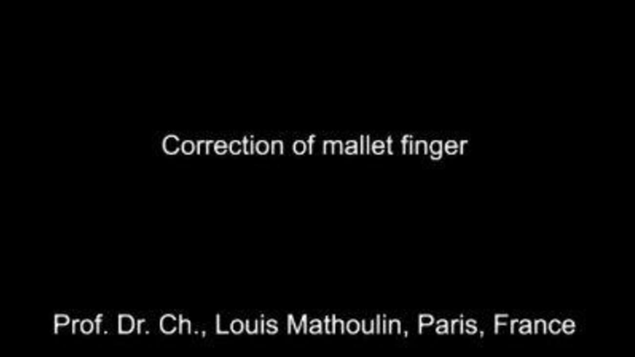 Surgical Correction of Mallet Finger Using the VITOM® System