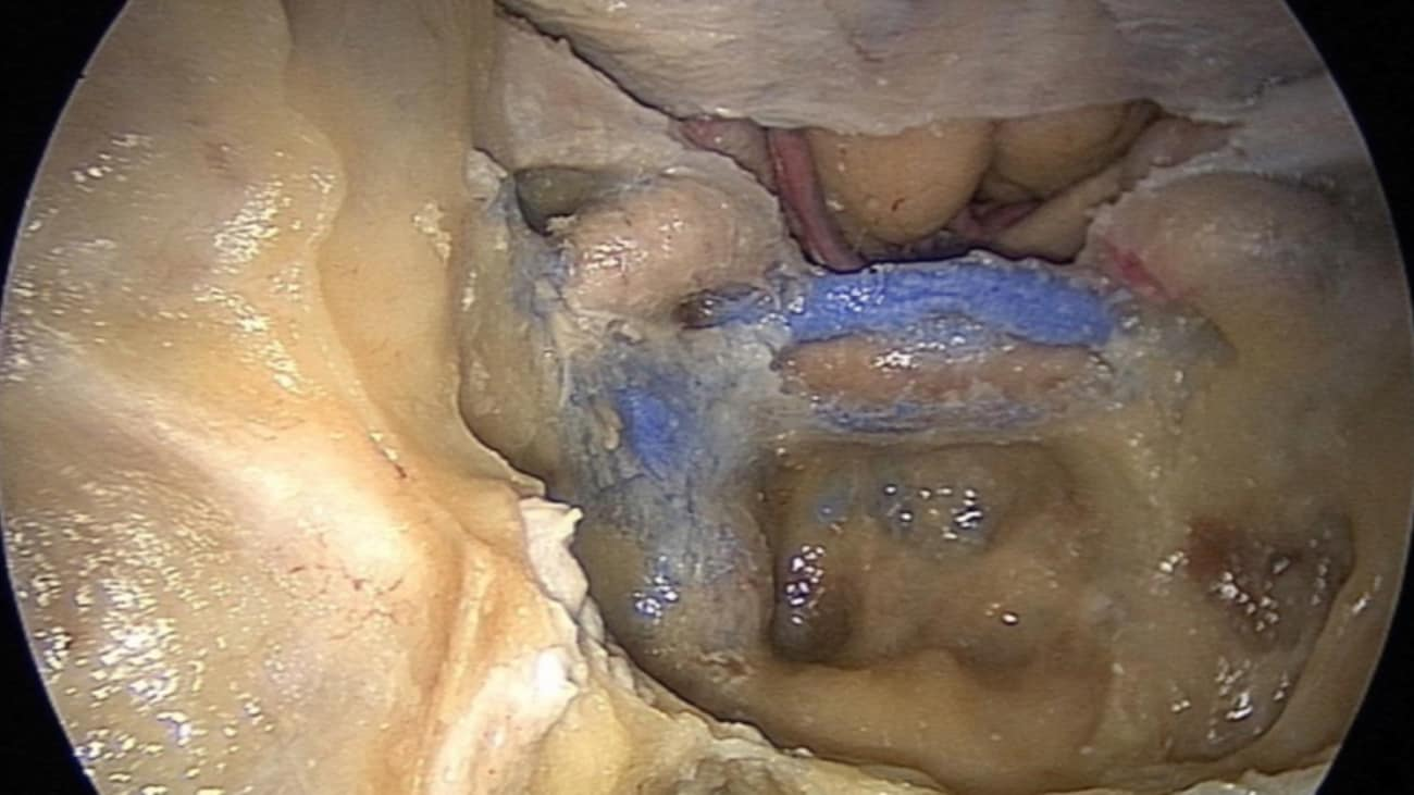 Endoscopic Endonasal Approach for Cavernous Sinus Dermoid Cyst