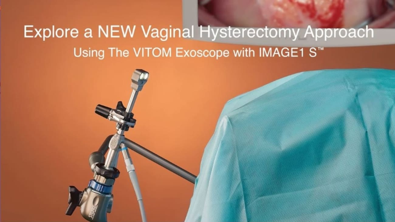 Vaginal Hysterectomy Using KARL STORZ VITOM Exoscope in Combination with IMAGE1™ S