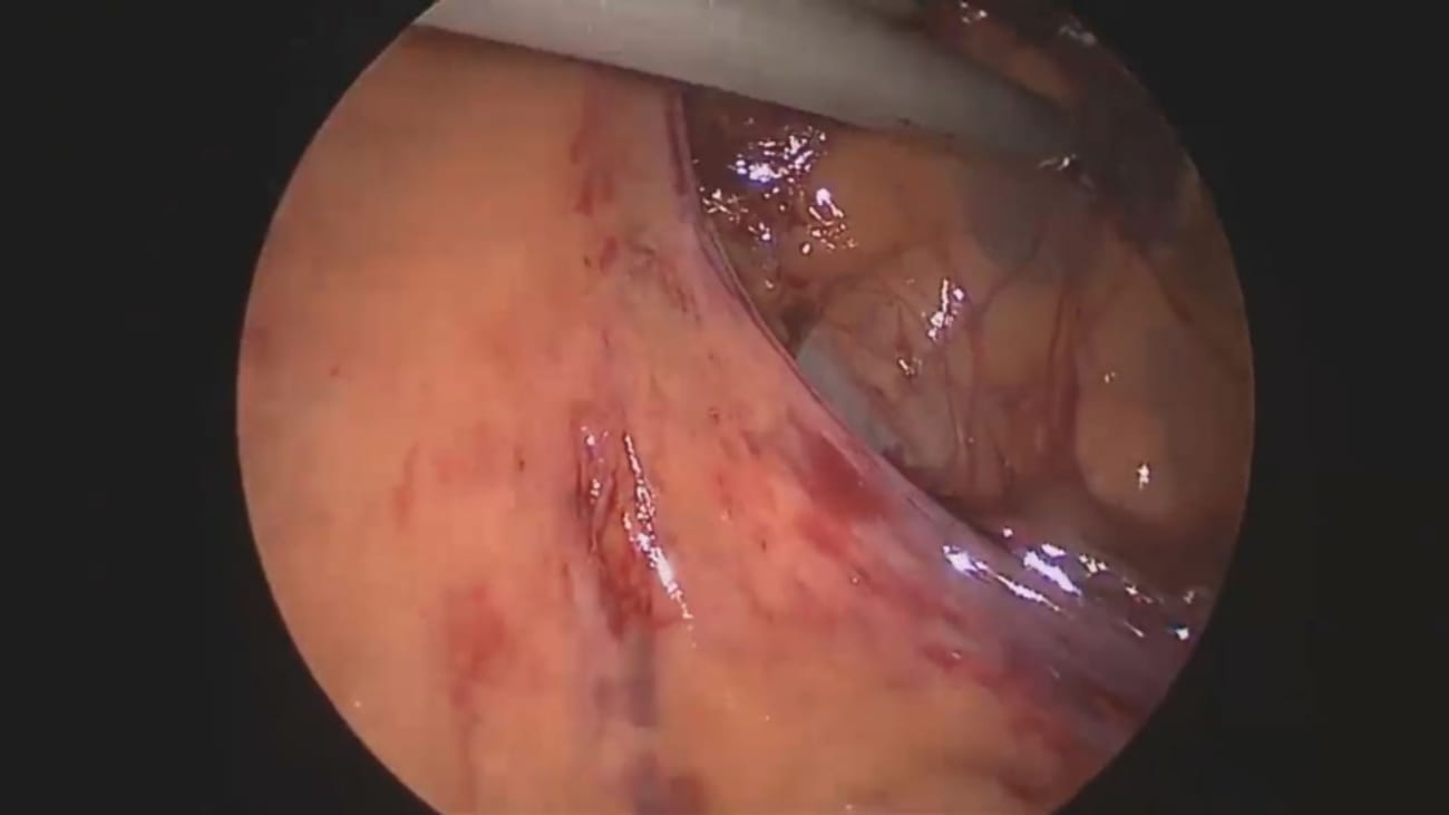 Using IMAGE1 S for Hemicolectomy