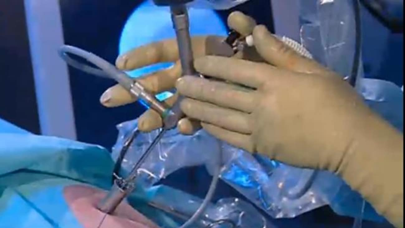 Minimally Invasive Percutaneous Nephrolitholapaxy (MIP)