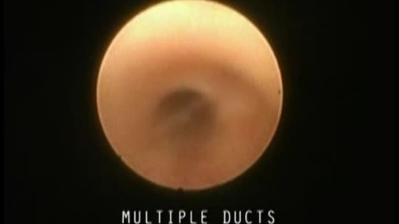 Endoscopic Exploration and Dilation of Multiple Ducts