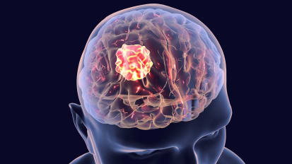 Study reports innovative combination of minimally invasive procedures Laser Interstitial Thermotherapy (LITT) & 'mini' craniotomy for treating 'inoperable' brain tumors