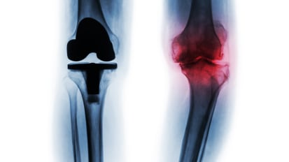High-Reliability Medicine Promotes Value for Total Joint Replacement Patients