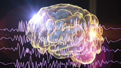 Finding a New Approach to Epilepsy Treatment
