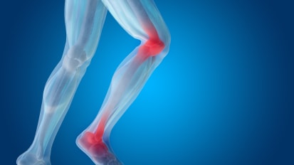ACL injury prevention and treatment