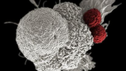 Response to Cancer Immunotherapy May Be Affected by Genes We Carry from Birth
