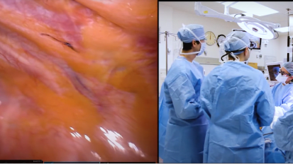 Enhancing Care for Thoracic Oncology Surgery Patients